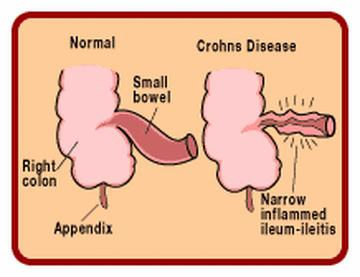 What Causes Crohn's Disease You Should Know