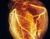 Cholesterolis. Tiesa ir melas (2 dalis)