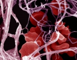 Imuninės sistemos sutrikimų sukeltos ligos siejamos su padidėjusia plaučių embolijos rizika