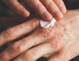 Kada ir kaip tepami vaistai sergant atopiniu dermatitu?
