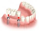 Dantų implantavimo stebuklai