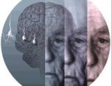 """Liga ar senatvė ir """"susidėvėjimas""""?"""
