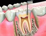 Endodontija – dantų šaknų kanalų gydymas