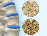 Kodėl kaulai tampa trapūs? Osteoporozė ir artozė