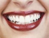 Ar pakankamai dažnai šypsotės?