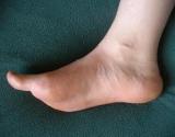 Dažniausios pėdos ligos