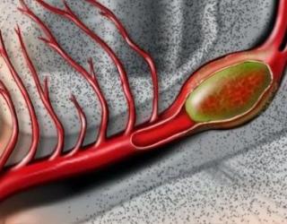 neįgalumas su hipertenzija 2 šaukštai hipertenzijos slėgis nuo 140 iki 100