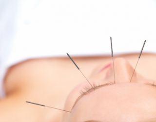 Akupunktūros galia