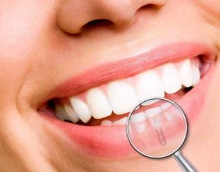 Prarasti dantys – ne tik estetinė problema