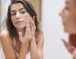 Aknė – daugiau nei kosmetinė problema