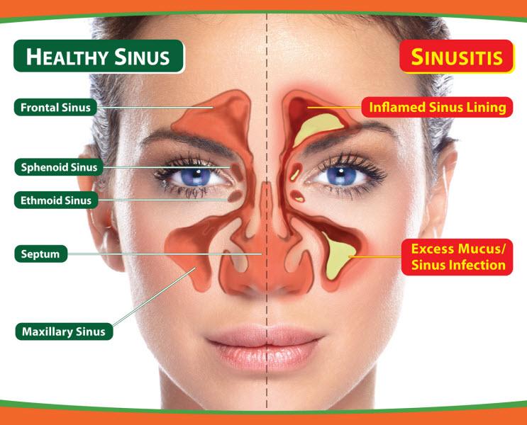 priekinis sinusitas ir hipertenzija)