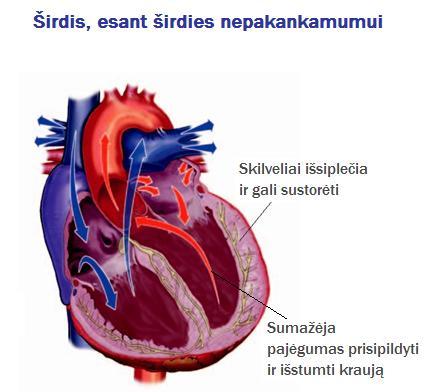 Kaip išvengti širdies ir kraujagyslių ligų: imtis prevencijos - Distonija November
