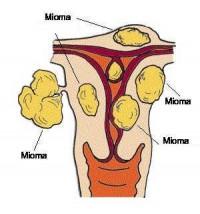 Kūdikių Disbakteriozė  Gastritas 2021