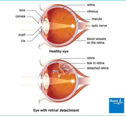 Ką turėtume žinoti apie glaukomą? | tralistas.lt