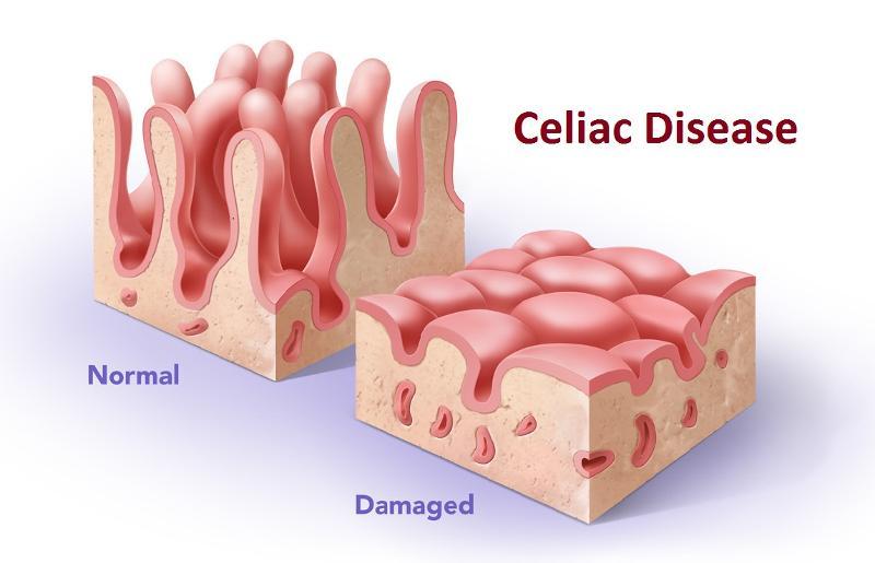 Celiakijos simptomai svorio kritimas - Saugus svorio netekimas per 4 mėnesius